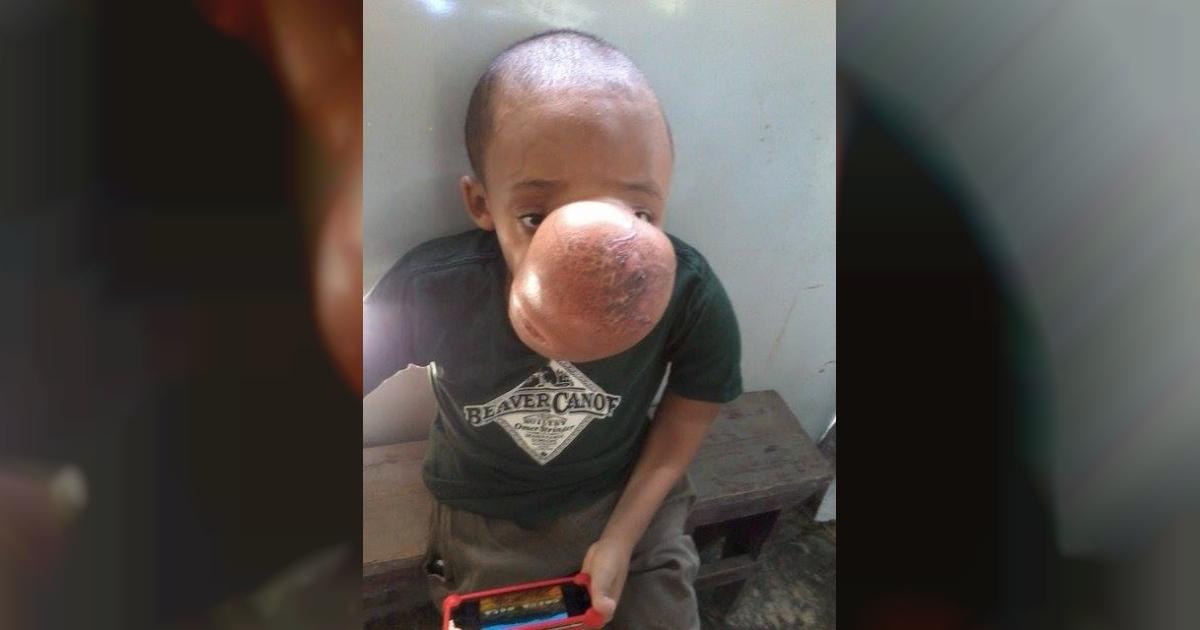 Extirparán tumor de 4,5 kilos del rostro de un adolescente