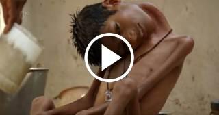 Un niño con el cuello doblado 180 grados recupera su vida tras exitosa operación