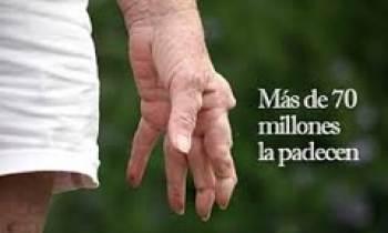 Día mundial de la artritis se celebra el 12 de octubre